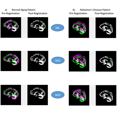 Statistical Brain Image Analysis